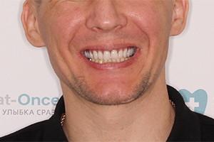 Однофазная имплантация верхней челюсти
