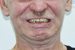Basal Complex восстановление верхней челюсти