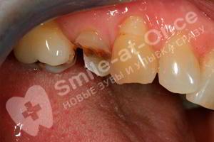 Треснул жевательный зуб