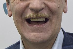 Имплантация ALL-ON-4 на верхней челюсти