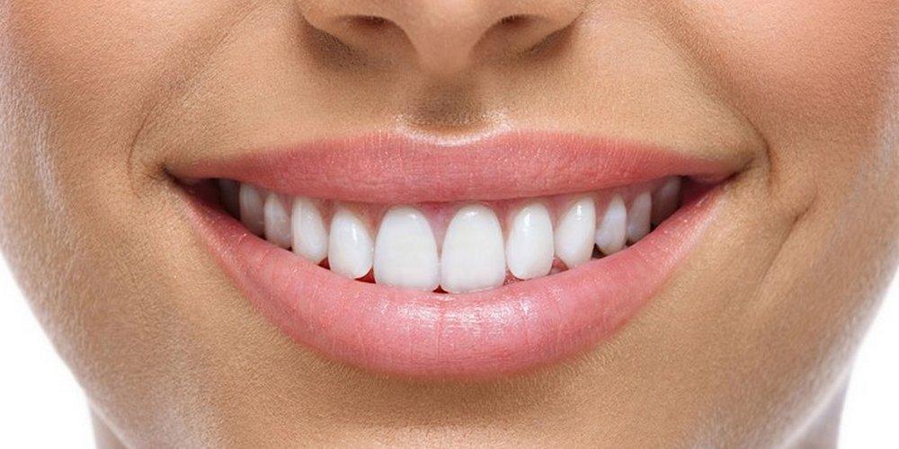 Укрепление эмали зубов Apadent Pro