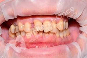 Установка базальных имплантов на 2 челюсти