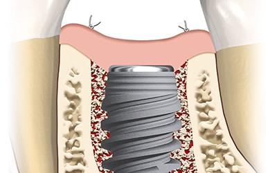 Имплант Straumann или Nobel без коронки