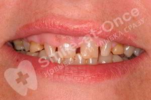 Установка зубных коронок