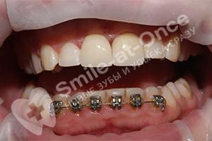 Зубные протезы на передние зубы