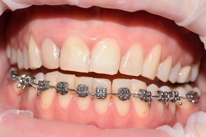 Профессиональная гигиена полости рта, фото до