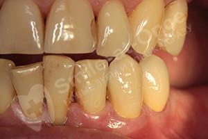Диоксид циркония на жевательные зубы