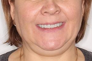 Разрушение зубов и концевой дефект