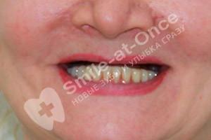 Имплантация All-on-6 на верхней челюсти