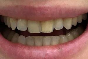 Виниры на фронтальную зону зубов верхней и нижней челюсти, фото до
