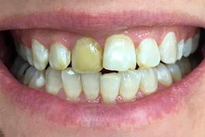 Установка виниров и коронок из керамики на зубы верхней челюсти, фото до