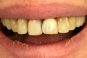 Керамические виниры Emax для новой улыбки, фото до