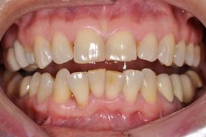 Виниры для улучшения эстетики зубов, фото до