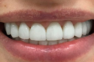 Виниры из керамокомпозита на передние зубы и имплантация для восстановления жевательных зубов, фото до