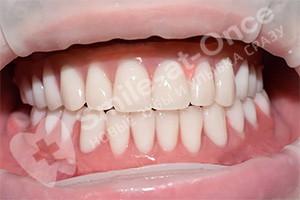 Имплантация и протезирование зубов All-on-6