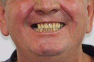 Имплантация жевательных зубов с двух сторон верхней челюсти