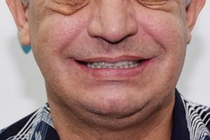 All-on-4 на верхней челюсти и съемный протез - до