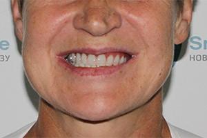 Комплексная базальная имплантация верх. челюсти