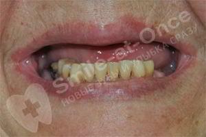 Восстановление всех зубов после съемного протеза