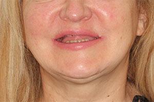 Имплантация всех зубов за 3 дня