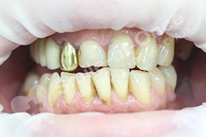Однофазная имплантация сегмента зубов