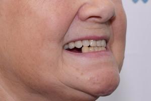 Базальный комплекс для верхней челюсти, протезирование All-on-4 для нижней