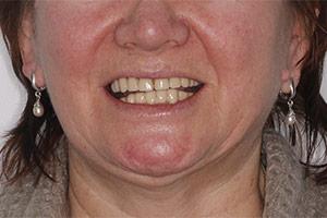 Имплантация и замена зубного протеза ДО