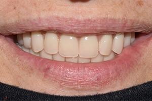 Комплексная однофазная имплантация зубов