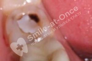 Лечение зуба и замена пломбы - До