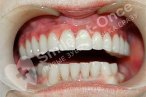 Базальная имплантация на верхней челюсти