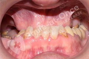 Протезирование верхней челюсти All-on-4