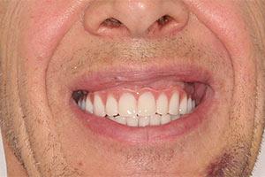 Комплексная базальная имплантация двух челюстей