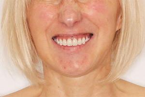 Однофазная имплантация двух челюстей за 3 дня!