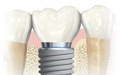 Зуб за 1 день - все включено