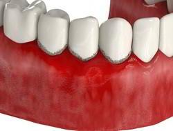 Зубной камень, зубной налёт
