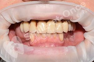 Восстановление зубов при помощи имплантации и протезирования