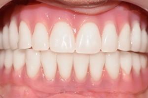 Замена старых мостов и разрушенных зубов. Протезирование All-on-4 с имплантами Zygoma